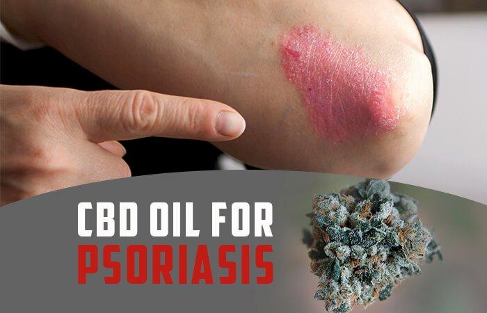 CBD Oil and Psoriasis